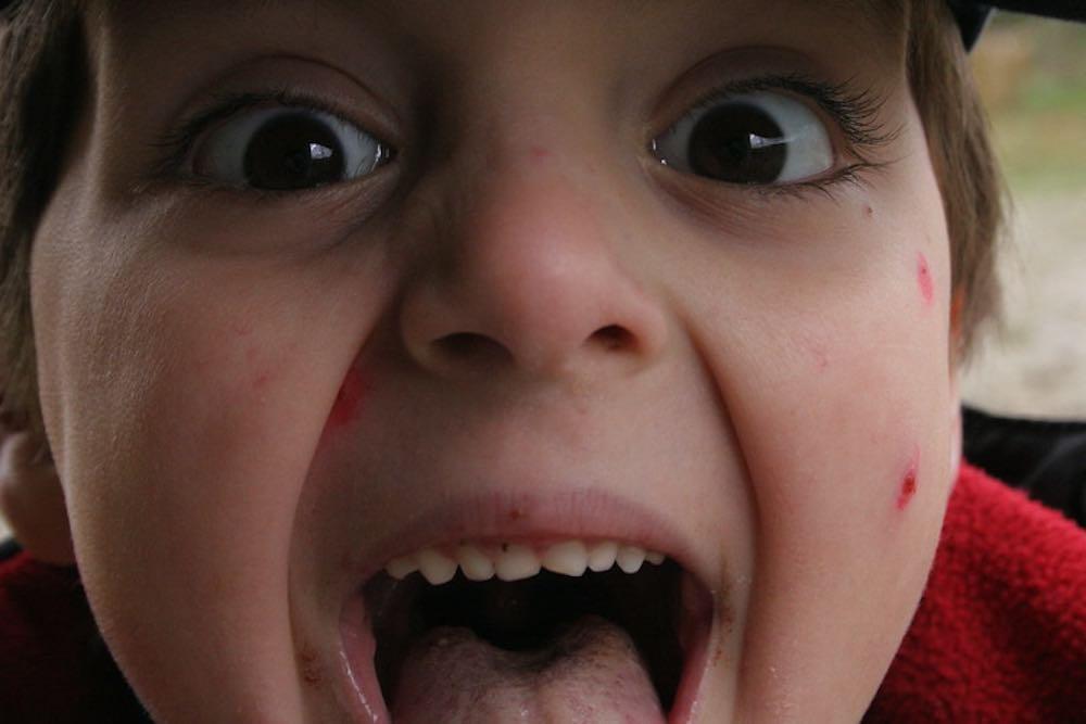 varicelle de ma petite soeur
